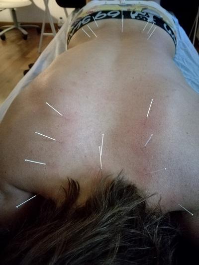 esremei fisioterapia palma